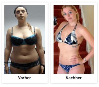 Gewicht Verlieren Kapseln Zum Abnehmen